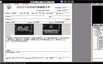 埃立福超声影像管理系统网络版
