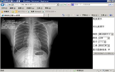 WEB PACS医学影像客户端